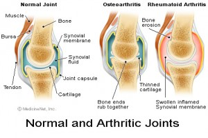 Osteoarthritis-of-Knee